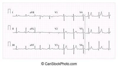 Heart Cardiogram Chart Vector. Illustration Of Wave Form On Checked Ecg Graph. Heart Rhythm, Ischemia, Infarction. Vitality Heartbeat