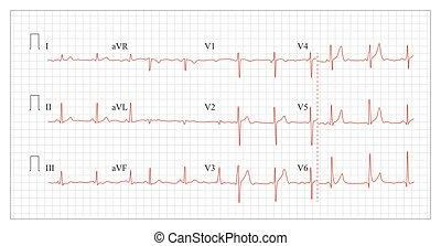 Heart Cardiogram Chart Vector. Set Healthy Heart Rhythm,...