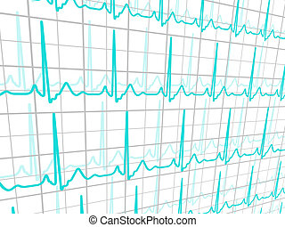 Heart cardiogram. EPS 8