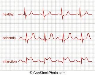 Heart cardiogram vector charts set. Healthy heart rhythm,...