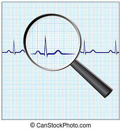 Heart checkup - Magnifying glass on an ecg diagram, eps8