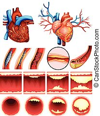Heart cholesterol - An image showing the heart cholesterol...
