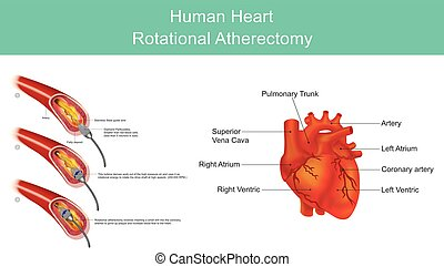 Atherectomy is a procedure which is performed to remove atherosclerotic plaque from diseased arteries. Atherosclerotic plaques are localized in either coronary. Illustration.