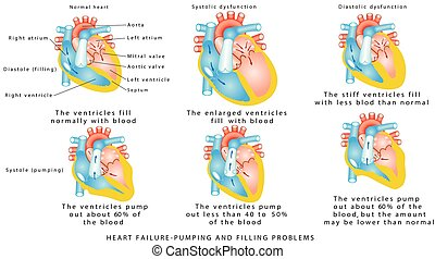 Heart failure. Heart Failure - Pumping and Filling Problems,  Systolic Dysfunction, Diastolic Dysfunction. Heart failure or congestive heart failure. Diseases of the Heart.