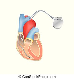 Heart pacemaker in work. Human heart anatomy cross section with working implantable cardioverter defibrillator.