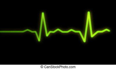 heart rythm on ecg monitor screen