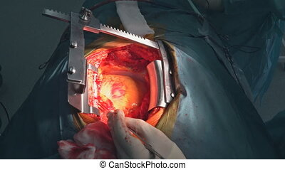 Heart surgery. Open heart surgery suture greater saphenous...