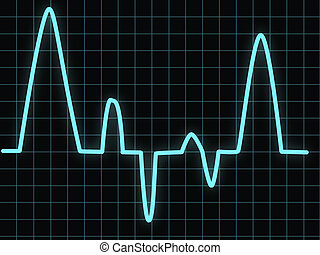 Heartbeat - Electrocardiogram