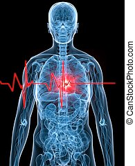 heartbeat/heartattack - 3d rendered illustration of a human ...