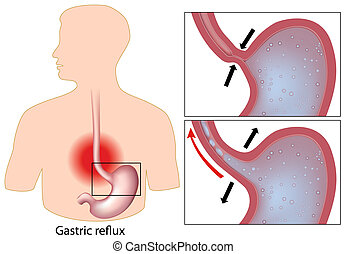 Heartburn - Diagram showing mechanism of gastric reflux...
