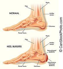 Heel bursitis illustration - A medical illustration of a ...