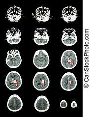 Hemorrhagic Stroke .  CT scan (computed tomography) of brain ( c