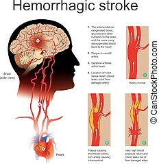 Hemorrhagic stroke. - Plaque causing thrombotic stroke torn...