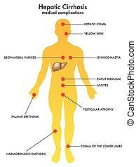 hepático, cirrosis