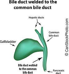 hepático, soldar, ilustración, aislado, infographics., vector, común, plano de fondo, gallbladder., patología, duct., cholecystitis., estructura