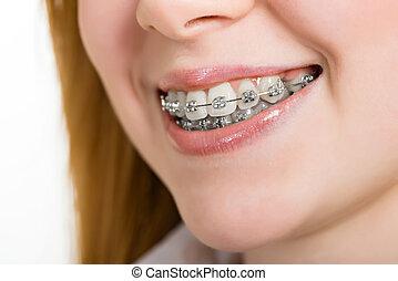 hermoso, dientes, mujer, joven, corchetes