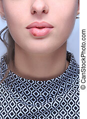 hermoso, labios, infected, virus, herpes