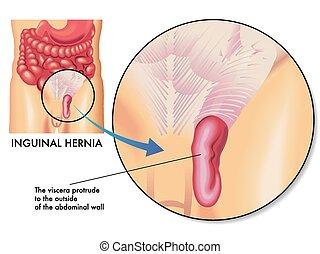 hernia, inguinal