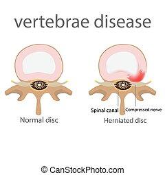 hernia. vertebrae disease - back pain. herniated disc....