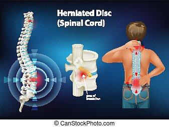 herniated, diagrama, actuación, disco