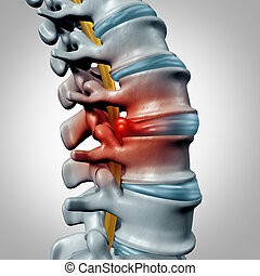 Herniated Disk - Herniated disk concept and spine pain...