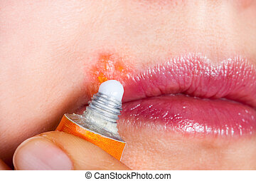 Herpes on the lip close-up macro. Woman lubricates the...