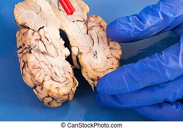 hersenen, dwarsdoorsnede, koe