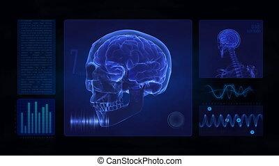 hersenen, medisch, display, schedel