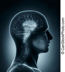 hersenen, medisch, stengel, rontgen, scanderen