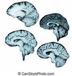 hersenen, witte , vrijstaand