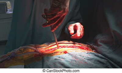 Stitching tissue after cardiac surgery stitched up skin after an operation