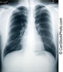 het controleren, tuberculose