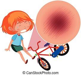 het vallen, fiets, van, meisje