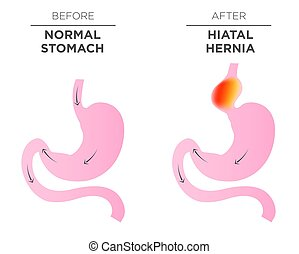 Medical image of Hiatus hernia