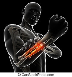 Highlighted arm - 3d rendered illustration - painful arm