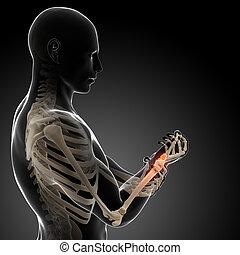 3d rendered illustration - painful arm/wrist