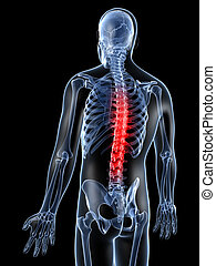 Highlighted back - 3d rendered illustration of a painful...