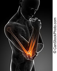 Highlighted elbow - 3d rendered illustration of pain in the ...