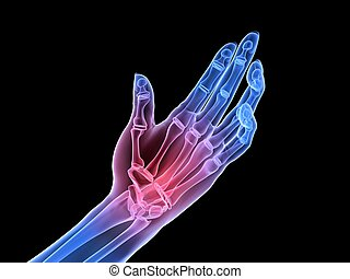 3d rendered x-ray illustration of human painful hand