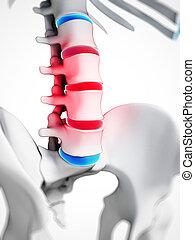 Highlighted herniated disk - 3d rendered illustration -...