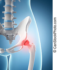 Highlighted hip joint - 3d rendered illustration of the...