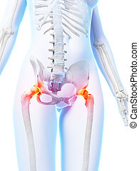 Highlighted hip joints - 3d rendered illustration of painful...