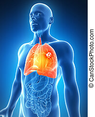 Highlighted male lung - cancer - 3d rendered illustration of...