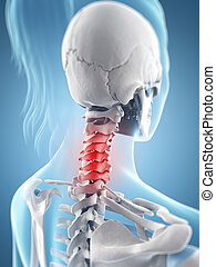 Highlighted neck - 3d rendered illustration of the inflamed...