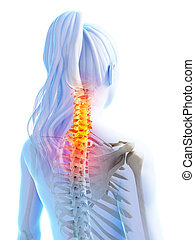 Highlighted upper spine - 3d rendered illustration of pain...