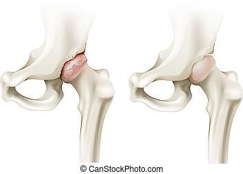 Hip arthritis - Illustration of the hip arthritis on a white...