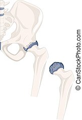 Hip bone of human