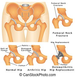 Hip joint. Hip fracture. Femoral Neck Fracture. ...