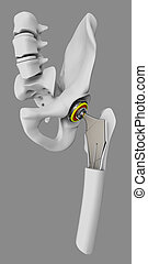 Hip joint replacement, artificial joint isolated gray 3d Illustration