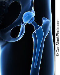 Hip replacement - 3d rendered illustration of a hip ...
